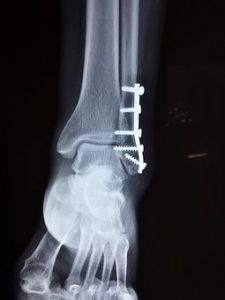 traumatisme par fracture